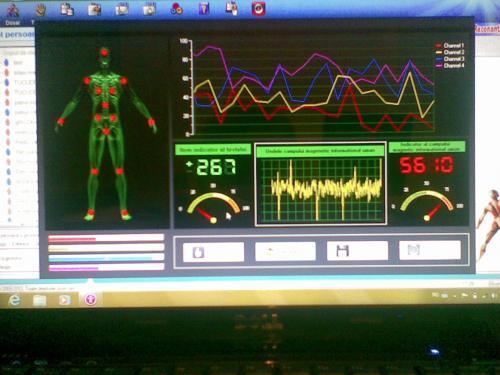 Tratament Baile Herculane - Analize - biorezonanta electromagneticaa
